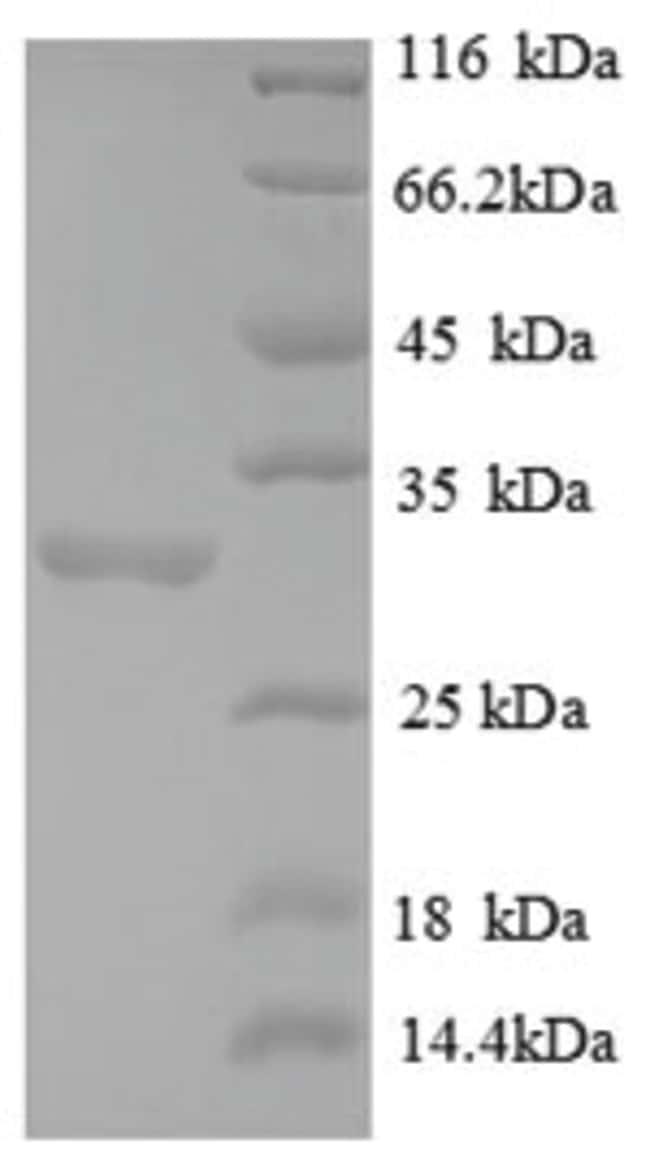 enQuireBio™Recombinant Human FOXP3 / Scurfin Protein 50μg enQuireBio™Recombinant Human FOXP3 / Scurfin Protein