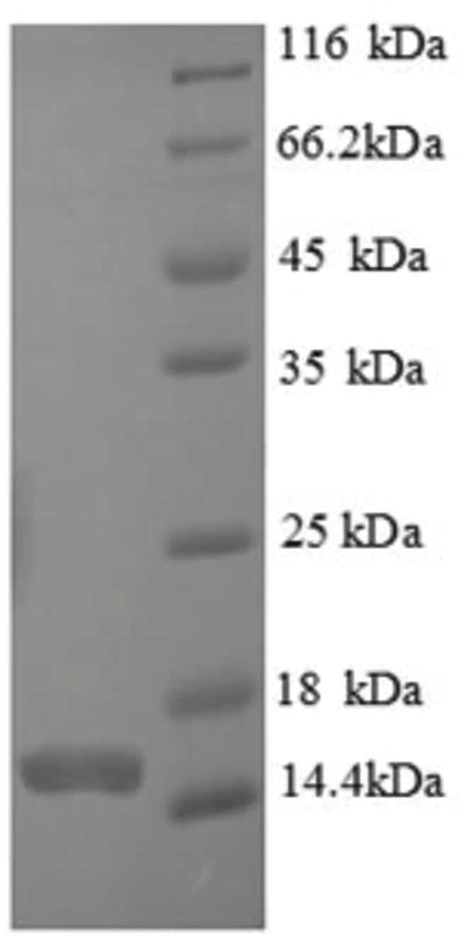 enQuireBio™Recombinant Human CASP7 / caspase 7 / MCH3 Protein 10μg enQuireBio™Recombinant Human CASP7 / caspase 7 / MCH3 Protein