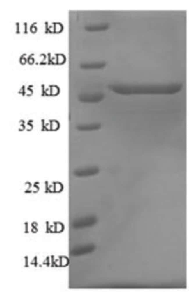 enQuireBio™ Recombinant Rat p53 / TP53 Protein 100μg enQuireBio™ Recombinant Rat p53 / TP53 Protein