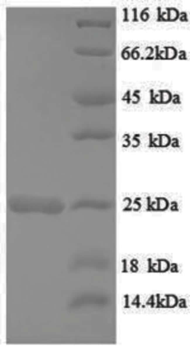 enQuireBio™Recombinant Rat HRAS / GTPase Hras Protein 200μg enQuireBio™Recombinant Rat HRAS / GTPase Hras Protein