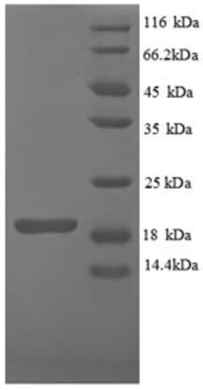 enQuireBio™Recombinant Mouse IFNG / Interferon Gamma Protein 500μg enQuireBio™Recombinant Mouse IFNG / Interferon Gamma Protein