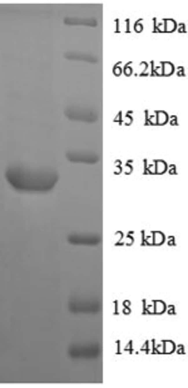 enQuireBio™Recombinant Rat Vasopressin V1a receptor Protein 1mg enQuireBio™Recombinant Rat Vasopressin V1a receptor Protein