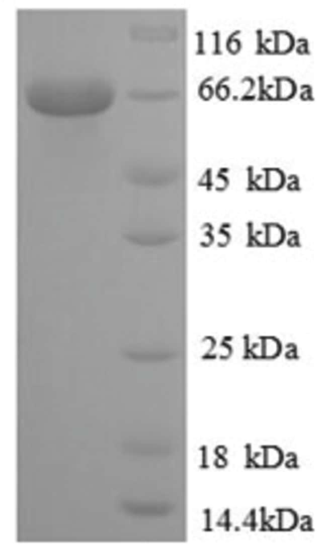 enQuireBio™Recombinant Human NR2C2 Protein 100μg enQuireBio™Recombinant Human NR2C2 Protein