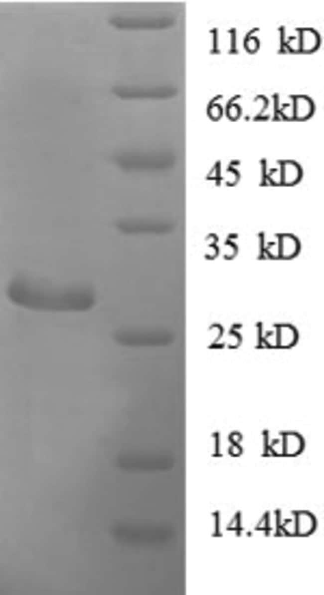 enQuireBio™Recombinant E. coli ADK Protein 500μg enQuireBio™Recombinant E. coli ADK Protein