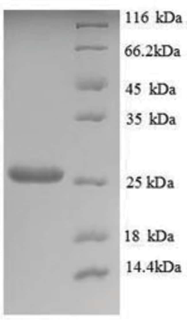 enQuireBio™Recombinant S. cerevisiae Trehalose-phosphatase Protein 50μg enQuireBio™Recombinant S. cerevisiae Trehalose-phosphatase Protein