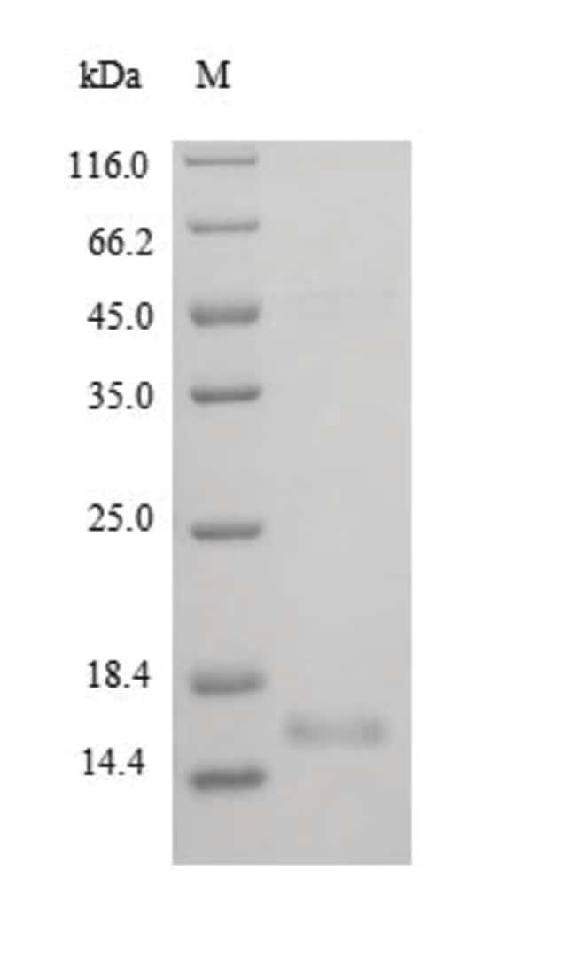 enQuireBio™Recombinant Rat BDNF Protein Isoform 2 Protein 100μg enQuireBio™Recombinant Rat BDNF Protein Isoform 2 Protein