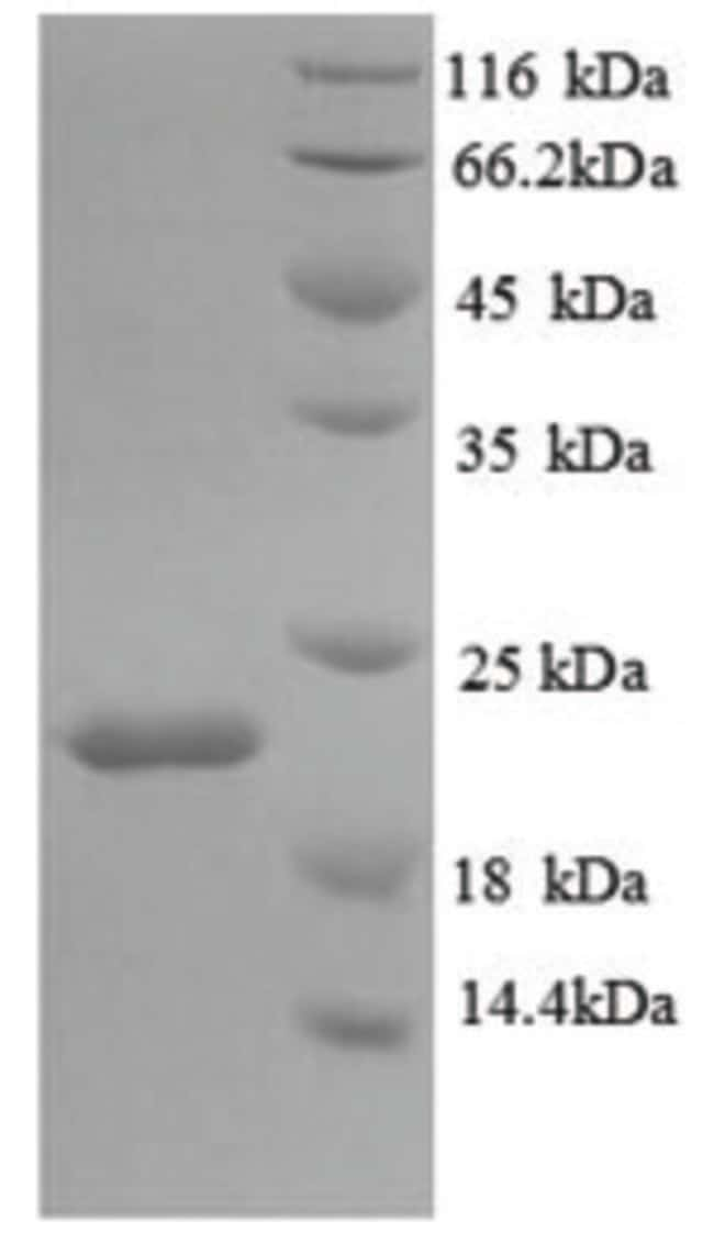 enQuireBio™ Recombinant Mouse IL18BP Protein 1mg enQuireBio™ Recombinant Mouse IL18BP Protein