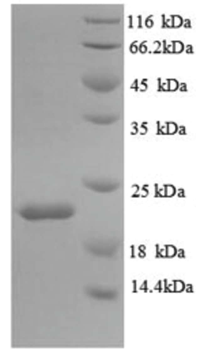 enQuireBio™Recombinant Mouse IL18BP Protein 500μg enQuireBio™Recombinant Mouse IL18BP Protein