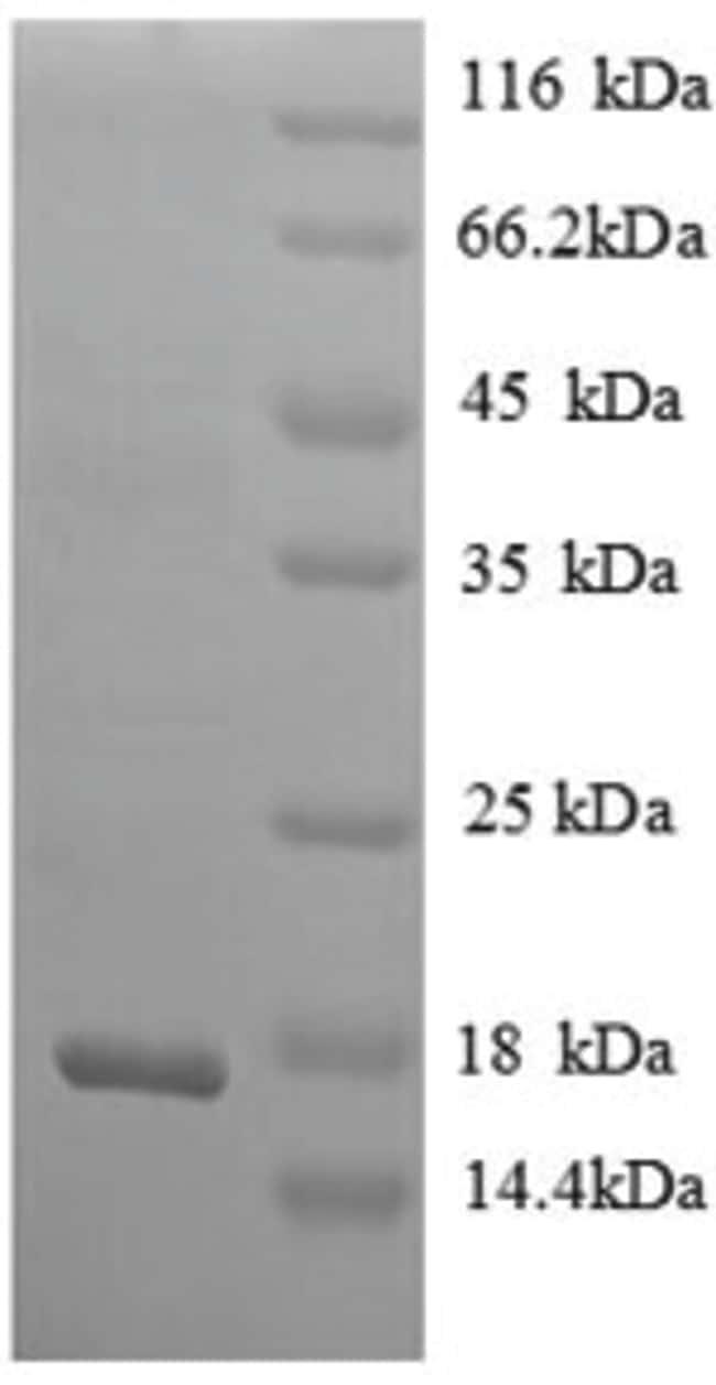 enQuireBio™Recombinant Rat beta-NGF / Beta-NGF Protein 200μg enQuireBio™Recombinant Rat beta-NGF / Beta-NGF Protein