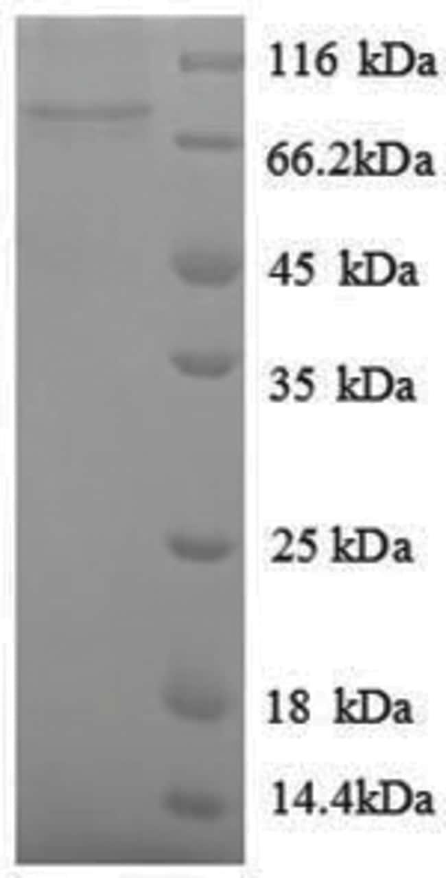 enQuireBio™Recombinant E. coli Ornithine decarboxylase, inducible Protein 100μg enQuireBio™Recombinant E. coli Ornithine decarboxylase, inducible Protein