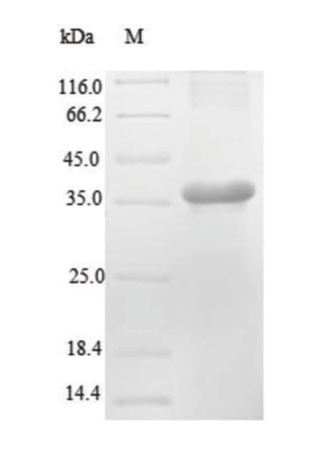 enQuireBio™ Recombinant Mouse Renin-2 Protein 1mg enQuireBio™ Recombinant Mouse Renin-2 Protein