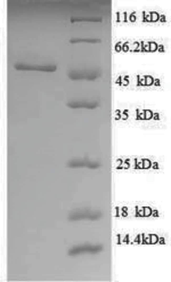enQuireBio™Recombinant E. coli UDP-glucose 6-dehydrogenase Protein 100μg enQuireBio™Recombinant E. coli UDP-glucose 6-dehydrogenase Protein