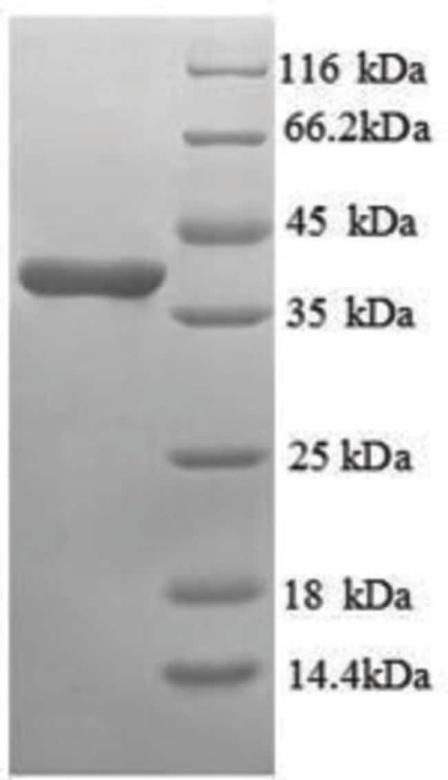 enQuireBio™Recombinant Human Annexin A3 Protein 500μg enQuireBio™Recombinant Human Annexin A3 Protein