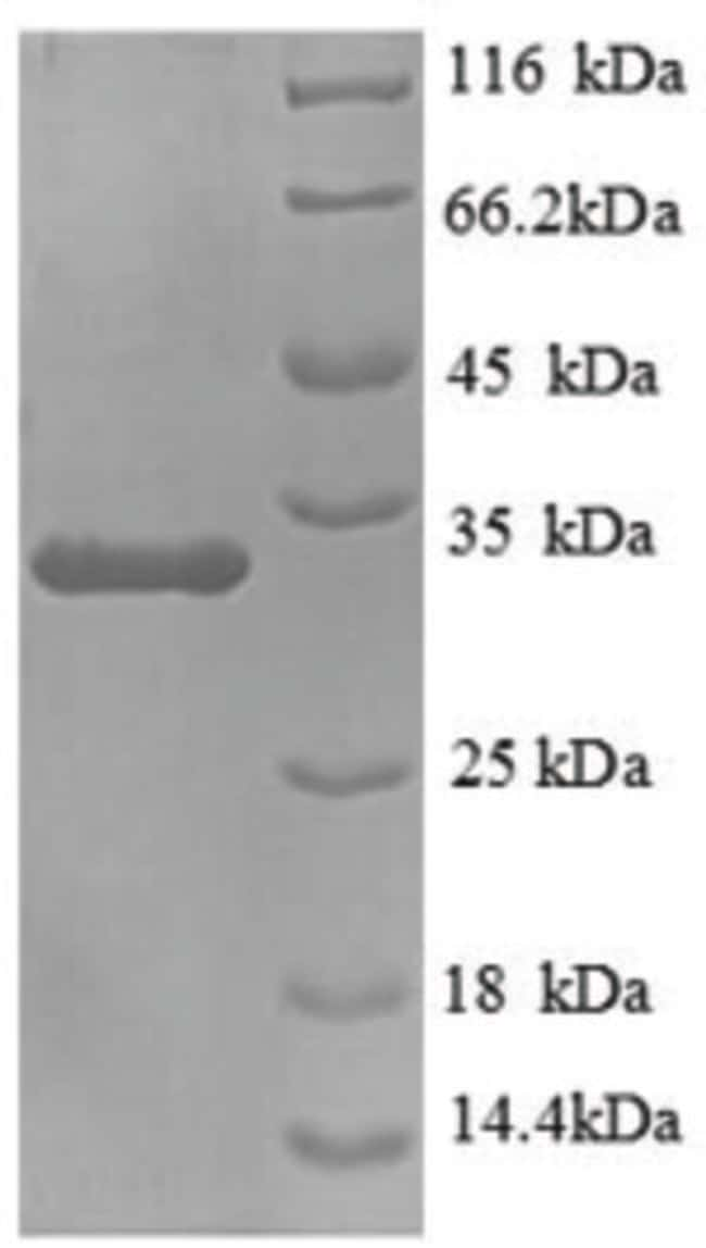 enQuireBio™ Recombinant Mouse MUC5AC Protein 1mg enQuireBio™ Recombinant Mouse MUC5AC Protein