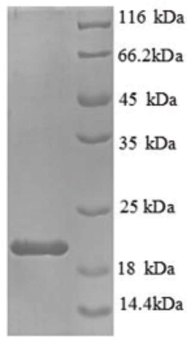 enQuireBio™ Recombinant Mouse IL-1 beta / IL1B Protein 10μg enQuireBio™ Recombinant Mouse IL-1 beta / IL1B Protein