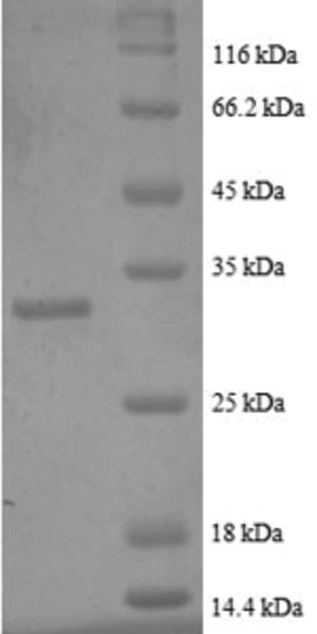 enQuireBio™Recombinant Human Metallothionein-2 Protein 50μg enQuireBio™Recombinant Human Metallothionein-2 Protein