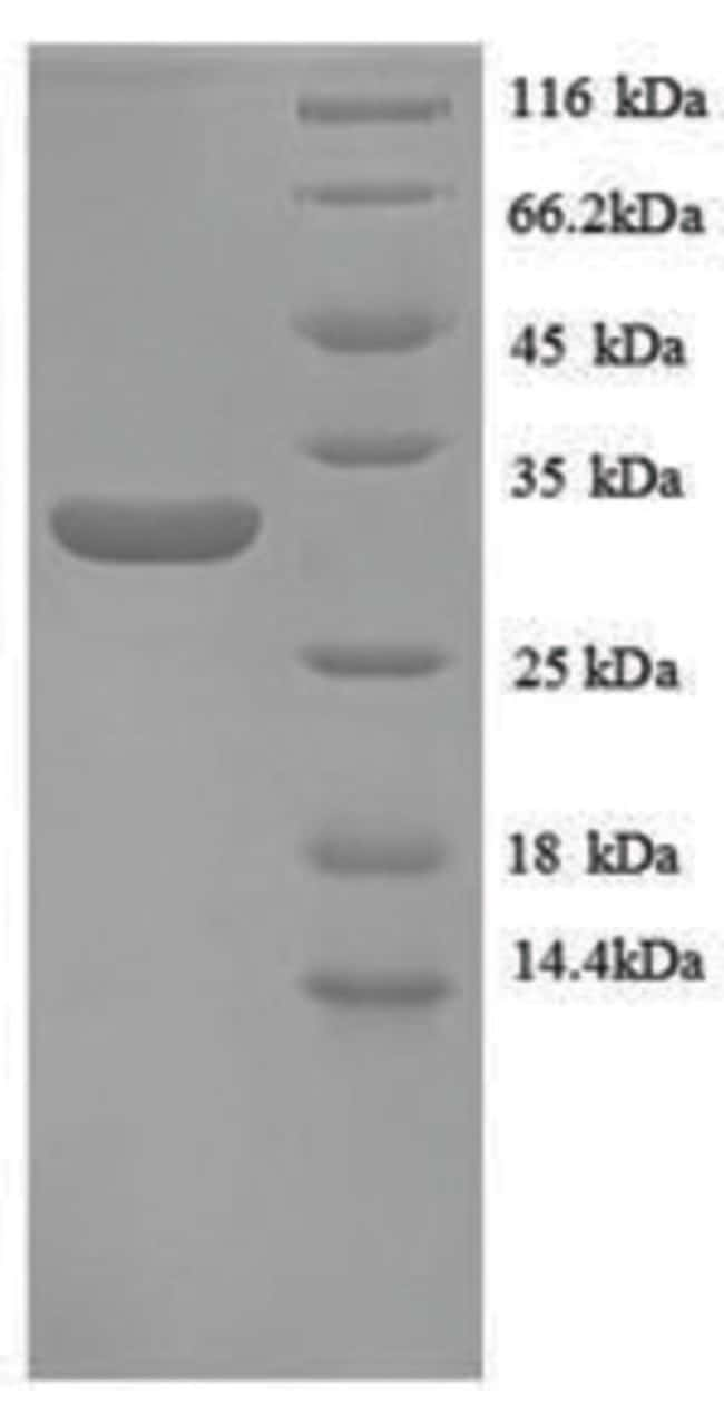 enQuireBio™Recombinant Human Metallothionein-1E Protein 200μg enQuireBio™Recombinant Human Metallothionein-1E Protein