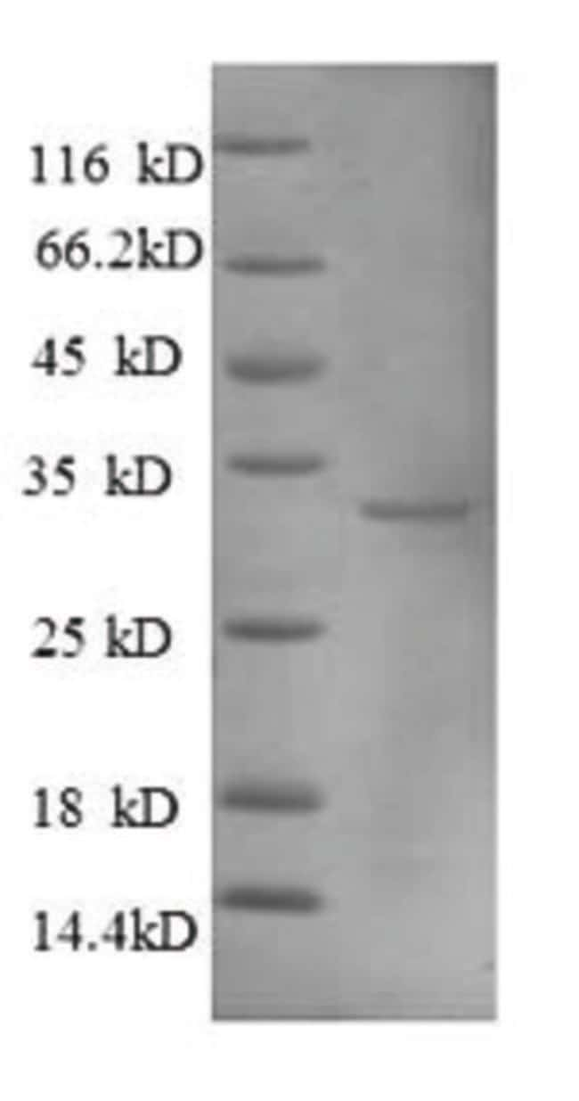 enQuireBio™Recombinant Human Metallothionein-1A Protein 500μg enQuireBio™Recombinant Human Metallothionein-1A Protein