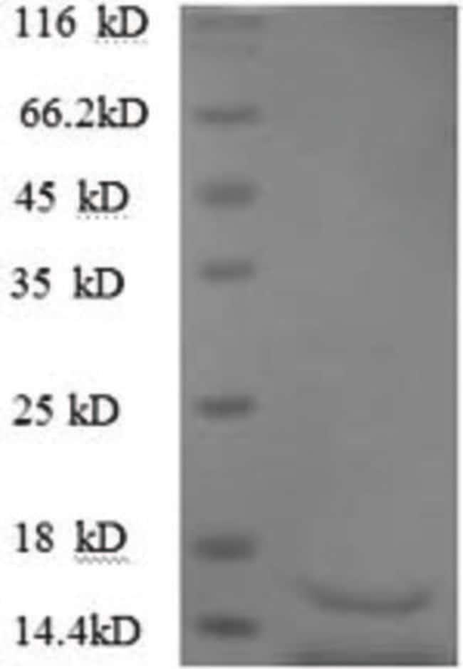 enQuireBio™Recombinant Human TGFB3 Protein 500μg enQuireBio™Recombinant Human TGFB3 Protein