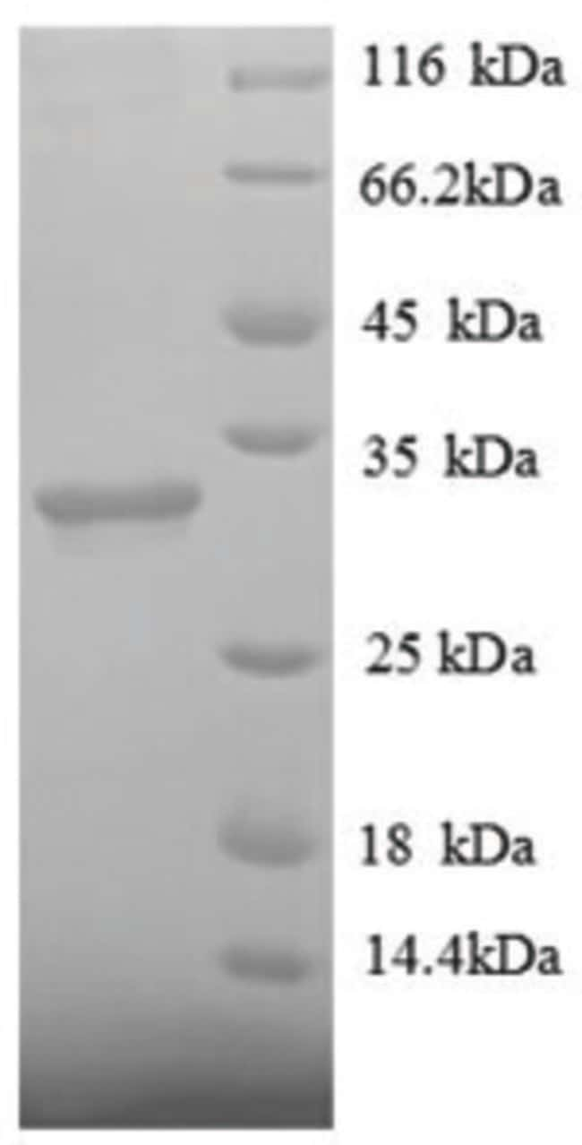 enQuireBio™Recombinant Human Histone deacetylase 7 Protein 100μg enQuireBio™Recombinant Human Histone deacetylase 7 Protein
