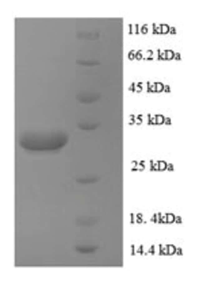 enQuireBio™Recombinant Human Zinc transporter ZIP1 Protein 1mg enQuireBio™Recombinant Human Zinc transporter ZIP1 Protein