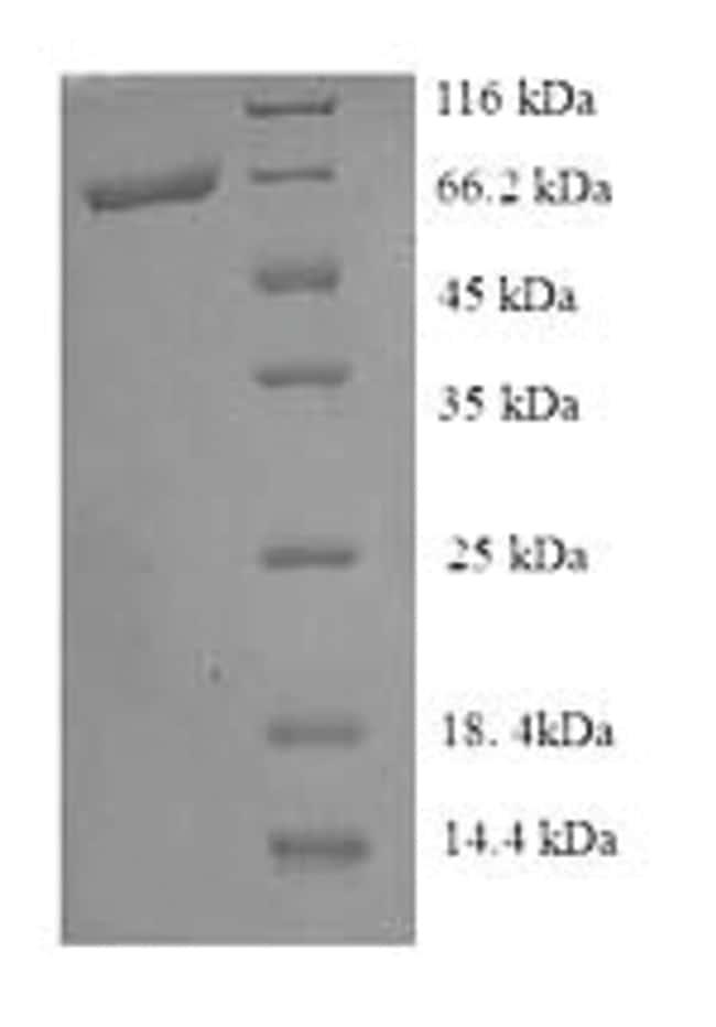 enQuireBio™Recombinant E. coli Pyruvate dehydrogenase [ubiquinone] Protein 10μg enQuireBio™Recombinant E. coli Pyruvate dehydrogenase [ubiquinone] Protein