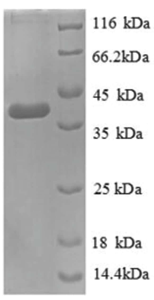 enQuireBio™Recombinant E. coli D-cysteine desulfhydrase Protein 200μg enQuireBio™Recombinant E. coli D-cysteine desulfhydrase Protein