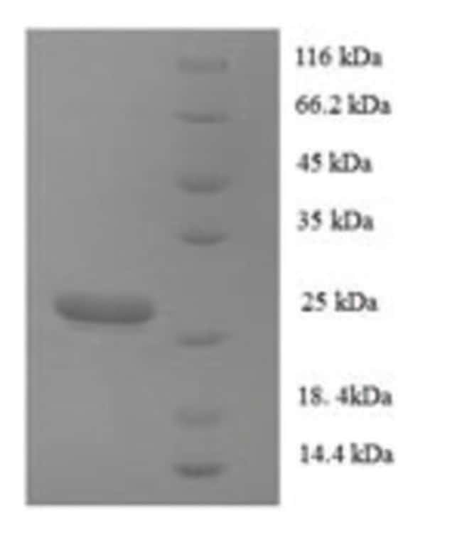 enQuireBio™ Recombinant Human Collagen alpha-1(XVII) chain Protein 10μg enQuireBio™ Recombinant Human Collagen alpha-1(XVII) chain Protein