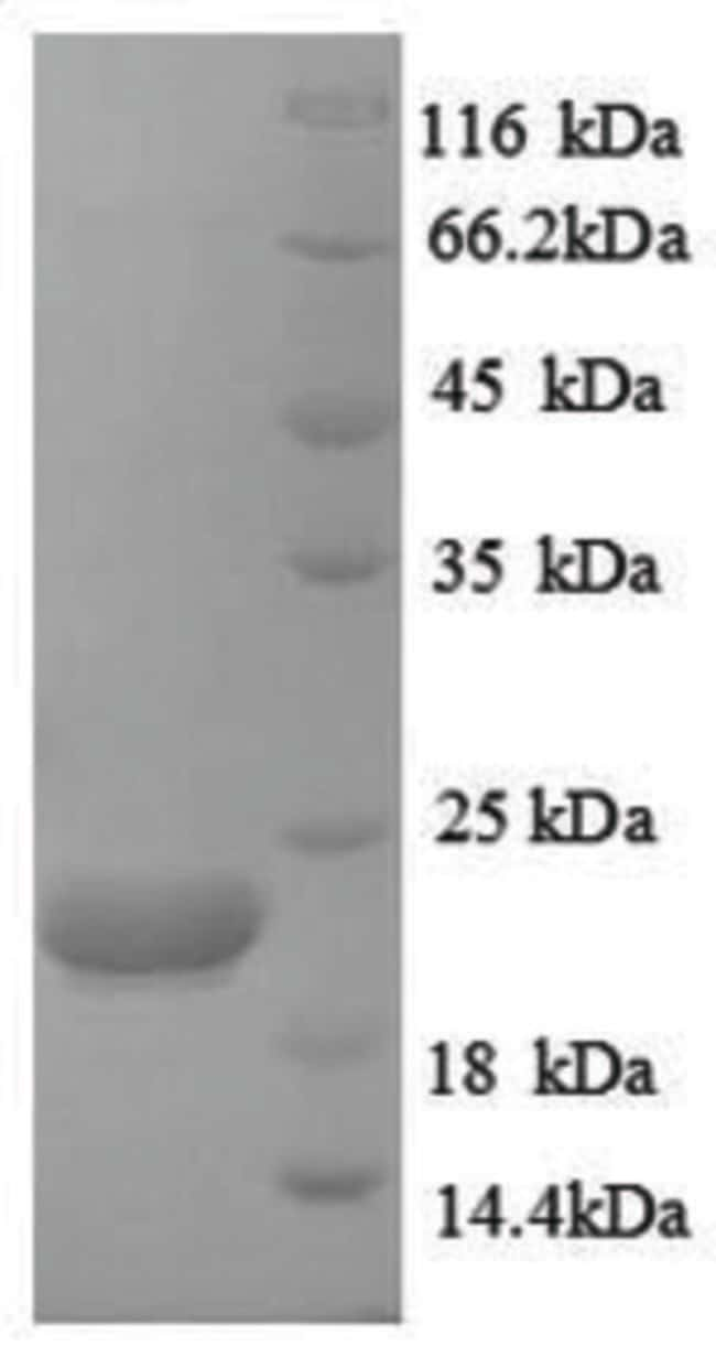 enQuireBio™Recombinant Human Caspase-8 Protein 50μg enQuireBio™Recombinant Human Caspase-8 Protein