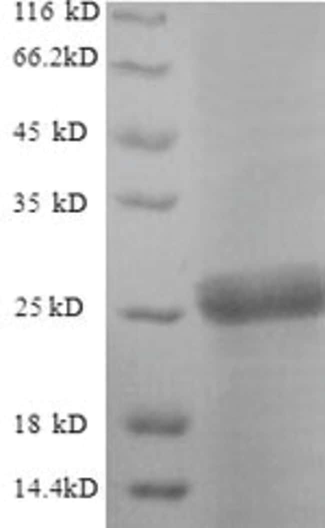 enQuireBio™Recombinant S. cerevisiae Neutral trehalase Protein 500μg enQuireBio™Recombinant S. cerevisiae Neutral trehalase Protein