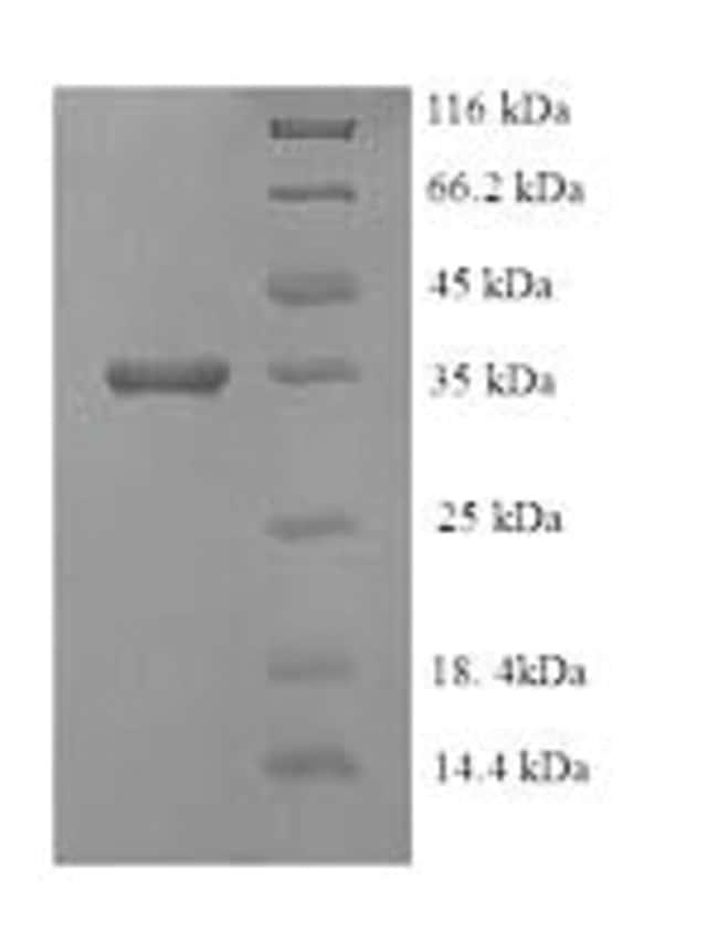 enQuireBio™Recombinant E. coli Ethanolamine ammonia-lyase light chain Protein 200μg enQuireBio™Recombinant E. coli Ethanolamine ammonia-lyase light chain Protein