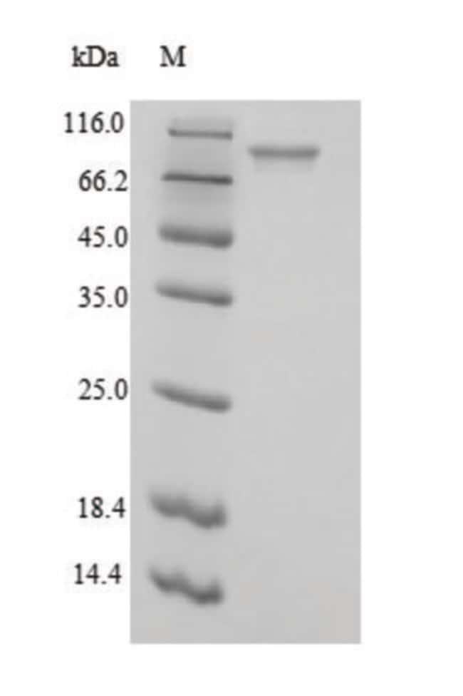 enQuireBio™Recombinant E. coli Phosphoenolpyruvate carboxylase Protein 1mg enQuireBio™Recombinant E. coli Phosphoenolpyruvate carboxylase Protein