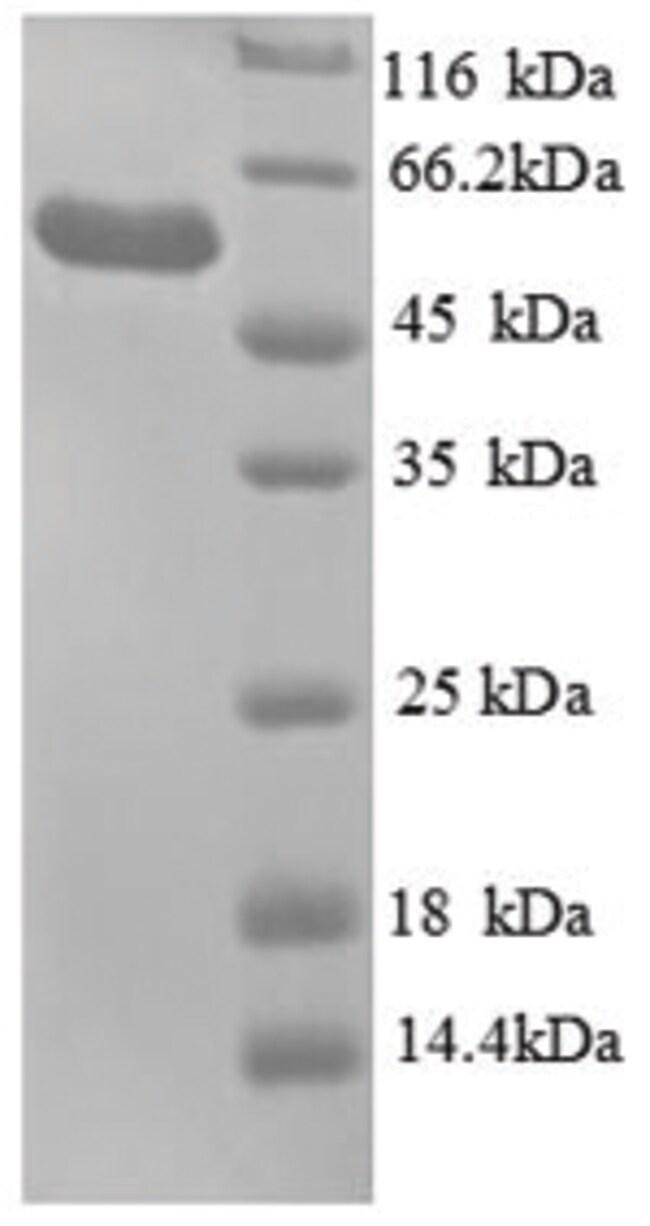 enQuireBio™Recombinant E. coli Glycerol kinase Protein 100μg enQuireBio™Recombinant E. coli Glycerol kinase Protein