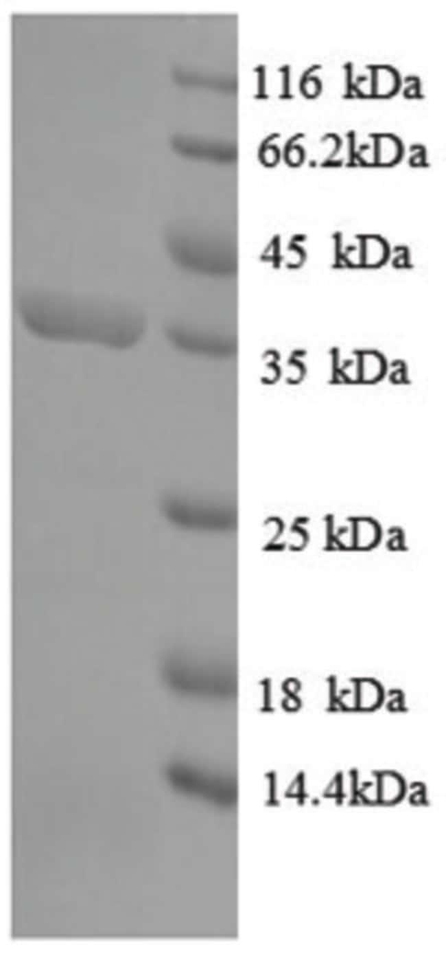enQuireBio™Recombinant E. coli 4-hydroxy-tetrahydrodipicolinate synthase Protein 200μg enQuireBio™Recombinant E. coli 4-hydroxy-tetrahydrodipicolinate synthase Protein