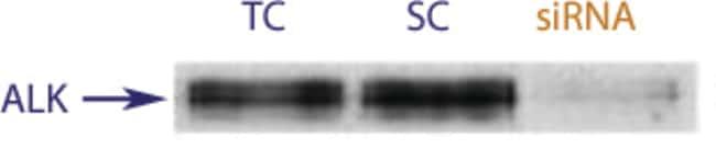 enQuireBio™TranslationBlocker Human ALK tyrosine kinase receptor / CD246 siRNA 2nmol enQuireBio™TranslationBlocker Human ALK tyrosine kinase receptor / CD246 siRNA