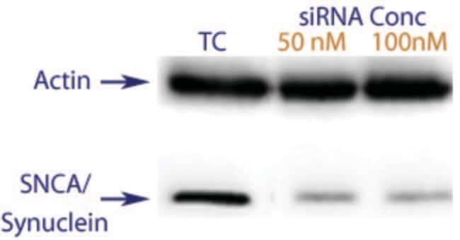 enQuireBio™TranslationBlocker Human Alpha-synuclein siRNA: ARNip Reactivos para ARNi y ARN