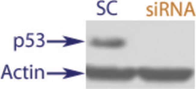 enQuireBio™TranslationBlocker Human Cellular tumor antigen p53 siRNA 10nmol enQuireBio™TranslationBlocker Human Cellular tumor antigen p53 siRNA