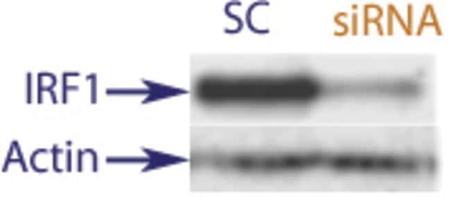 enQuireBio™TranslationBlocker Human IRF1 siRNA 2nmol enQuireBio™TranslationBlocker Human IRF1 siRNA