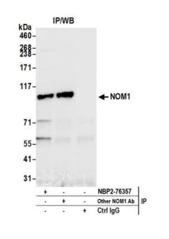 NOM1 Rabbit anti-Human, Polyclonal, Novus Biologicals 100 µL; Unconjugated