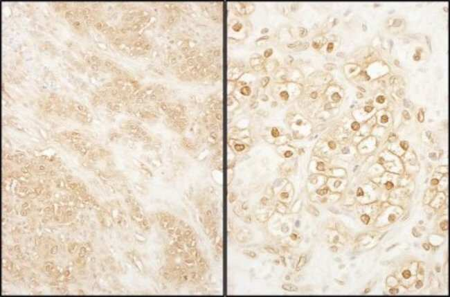 anti-PCTAIRE2, Polyclonal, Novus Biologicals 0.1mg; Unlabeled:Life Sciences