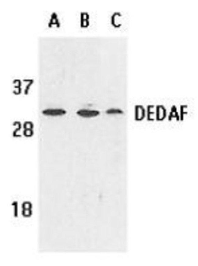 RYBP/DEDAF Rabbit anti-Human, Mouse, Rat, Polyclonal, Novus Biologicals