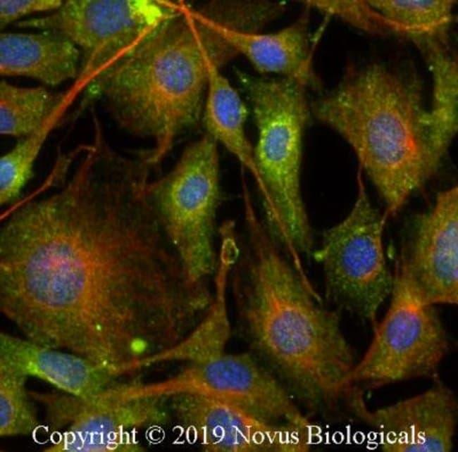 Rab7a Rabbit anti-Human, Mouse, Polyclonal, Novus Biologicals:Antibodies:Primary