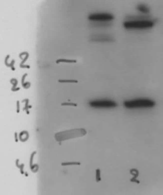 anti-SLPI, Clone: 31, Novus Biologicals 0.05mg; Unlabeled:Life Sciences