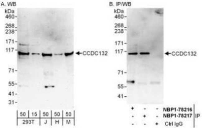anti-FLJ20097, Polyclonal, Novus Biologicals 0.1mL; Unlabeled:Life Sciences