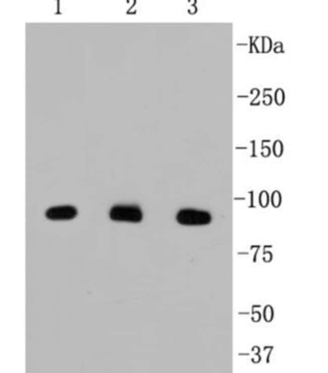 beta-Catenin Rabbit anti-Human, Clone: SA30-04, Novus Biologicals 100μL:Antibodies