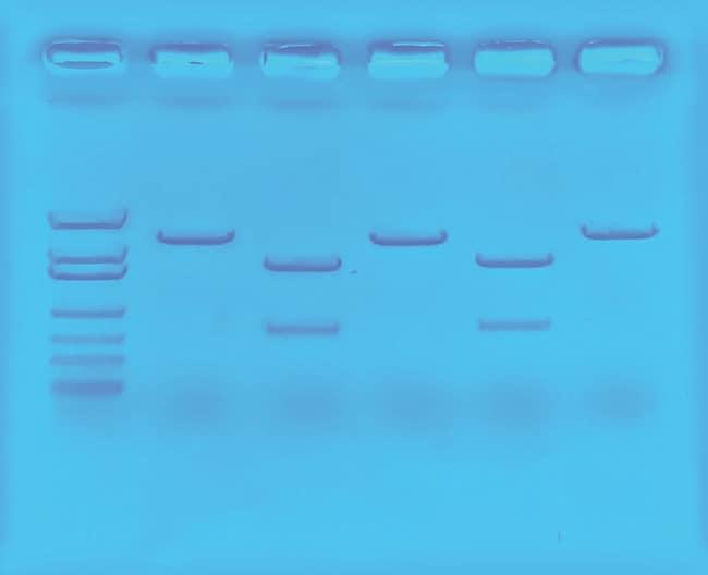 Edvotek Using CRISPR to Treat Cystic Fibrosis Kit  Undergraduate:Teaching