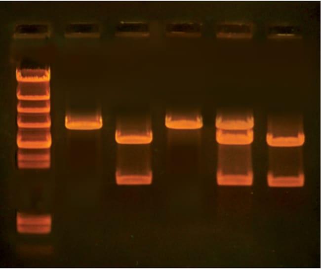 EdvotekIn Search of the Cholesterol Gene In Search Cholstrl Gene:Education