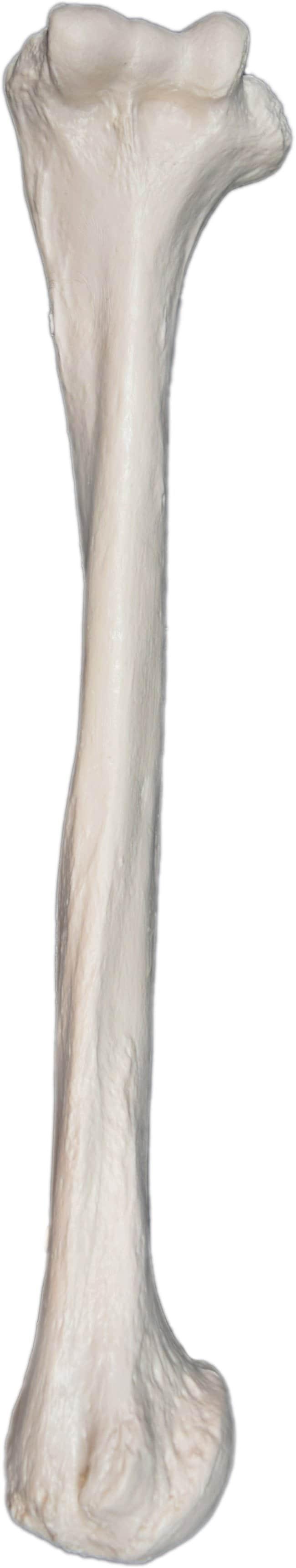 Eisco Human Humerus Bone Model  Left Side:Teaching Supplies