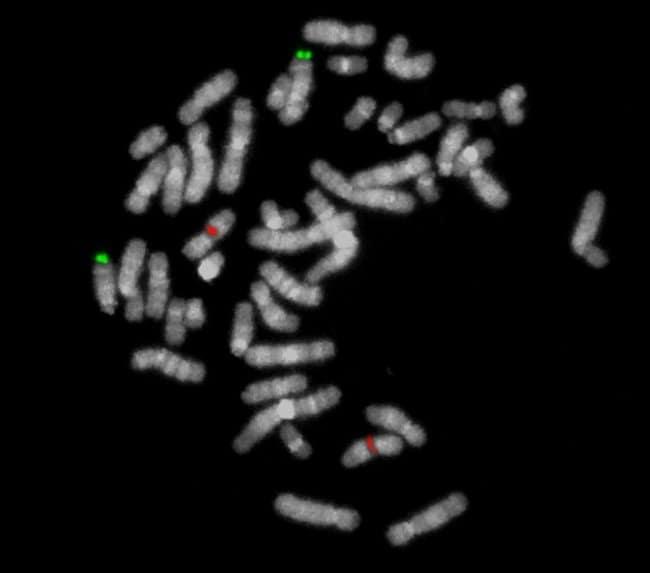 MetaSystems CL CCND1/IGH DNA Probe CL CCND1/IGH probe:Life Sciences