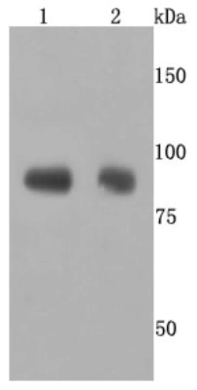 ADAM10 Rabbit anti-Human, Clone: JM32-11, Novus Biologicals 100µL